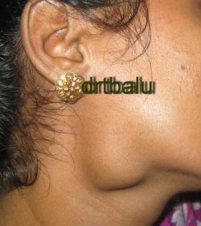 Parotid Gland Swelling Natural Treatment